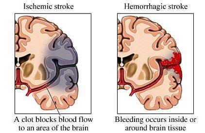 stroke 2 types