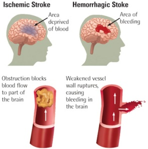 stroke 2 typesA